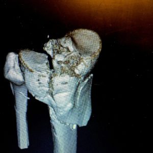 "This is a 3D reconstruction of my CT scan early in the process. If I heard the medical assistant correctly, I think they may have had that left-most chuck of Tibia all the way out of my leg at one point during the surgery. The apparent ""break"" in the Fibula is just an artifact from the 3D rendering. That bone is fine."